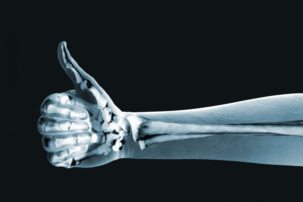 Health Care Essay about x-rays